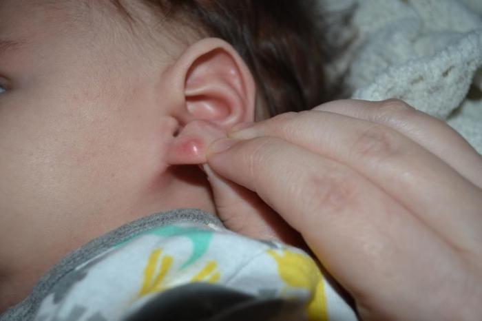 В дырках в ушах уплотнение