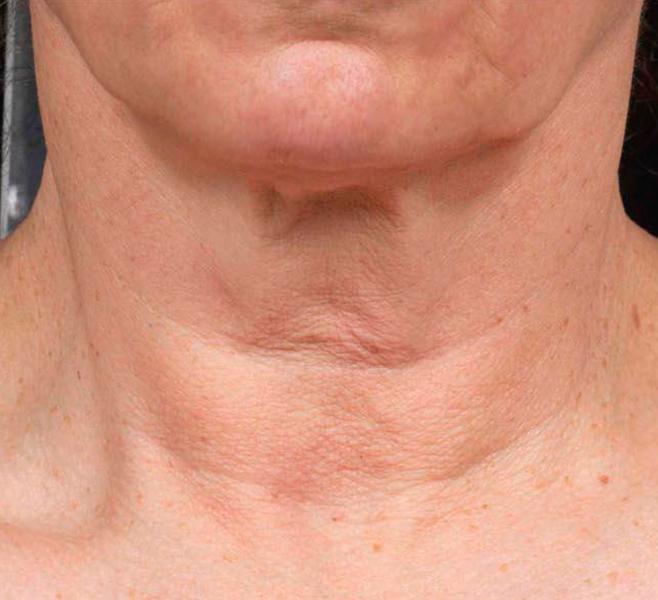 Выполнять упражнения против морщин на шее очень полезно и легко.