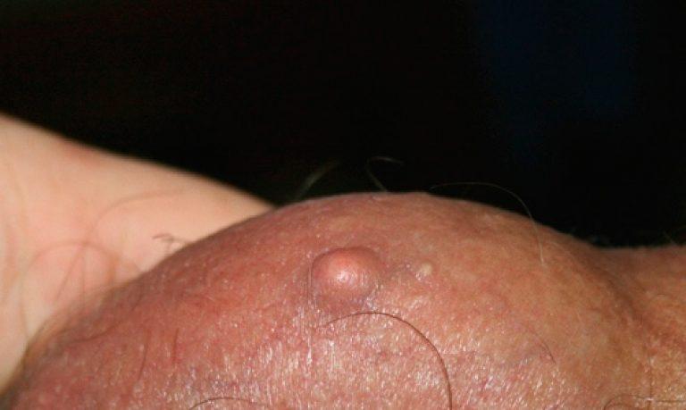 Подкожное уплотнение на интимных органах