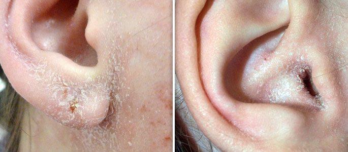 Шелушение в ушах – четыре причины