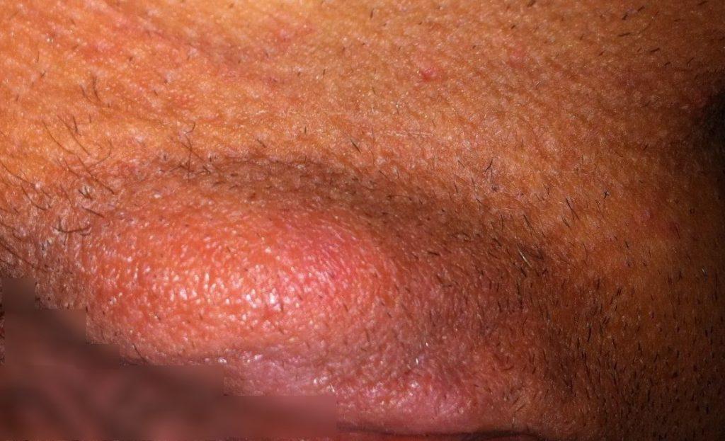 воспаления сальных желез на коже интимной зоны