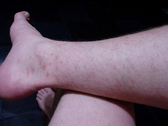 Красные точки на ногах руках и теле женское белье на улице