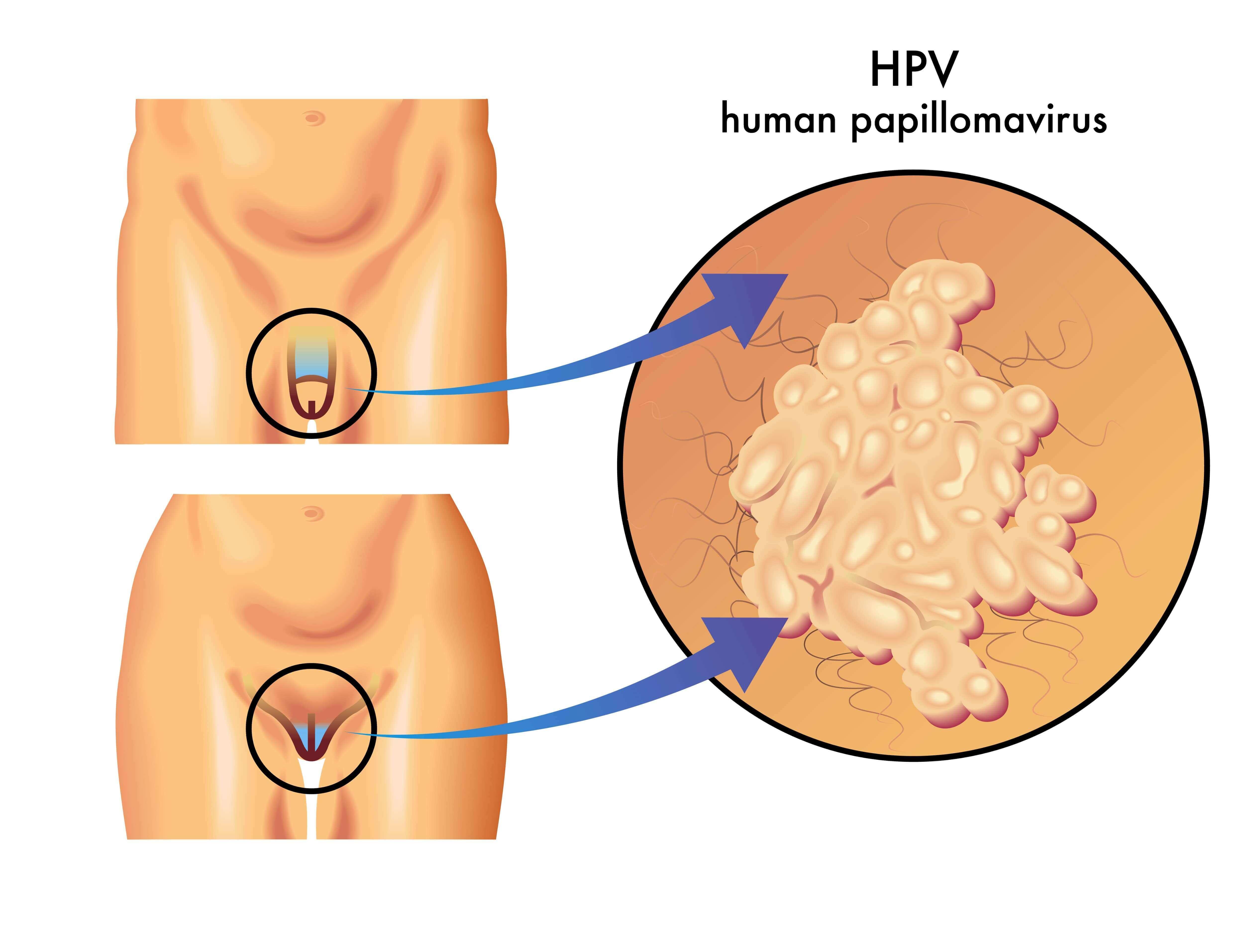 Анальный секс и вирус папилломы