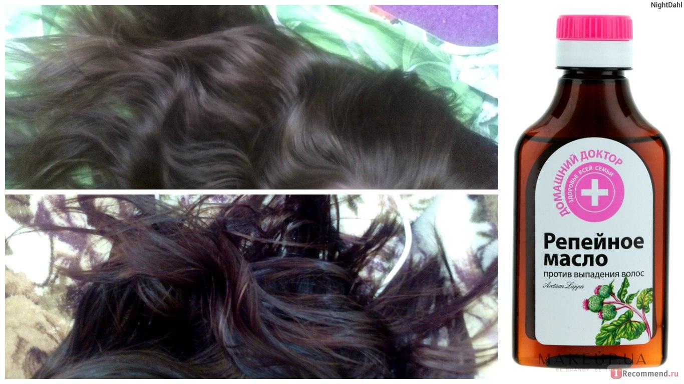 Учтите, что во время простого мытья головы или расчесывания, мало кто обращает внимание на то количество волос, которое выпадает.