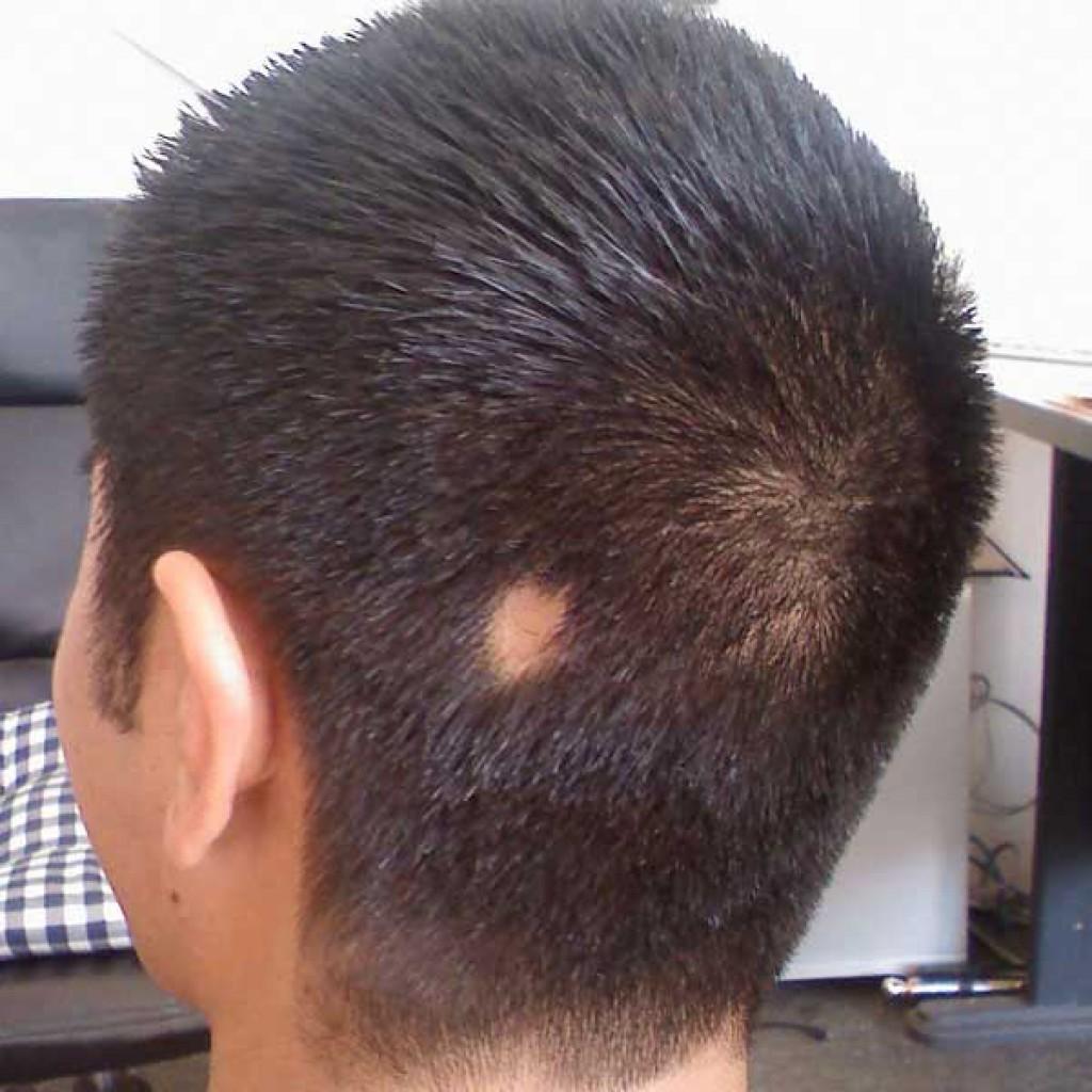 Выпадение волос на голове у женщин: причины и лечение