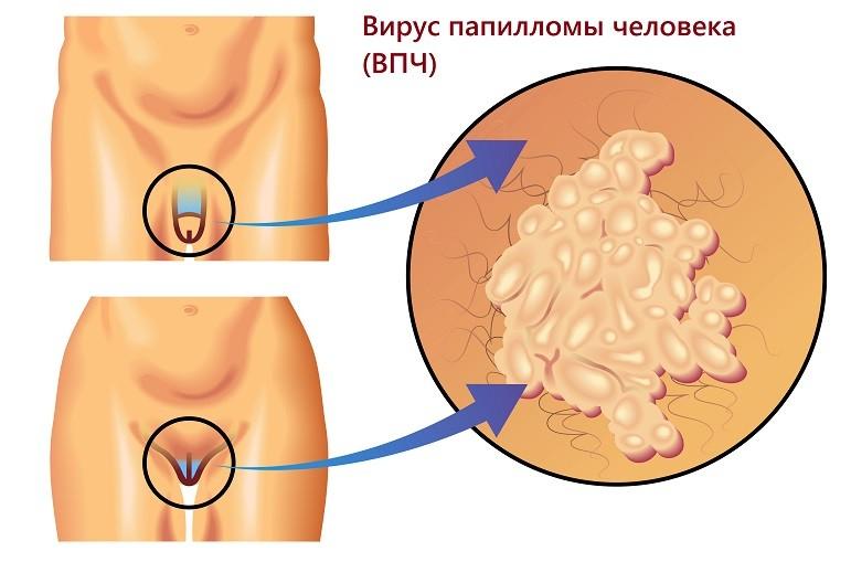 Бородавки между анальным и вагинальным отверстиями