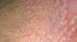 Отчего появились болячки на вагинальных губах