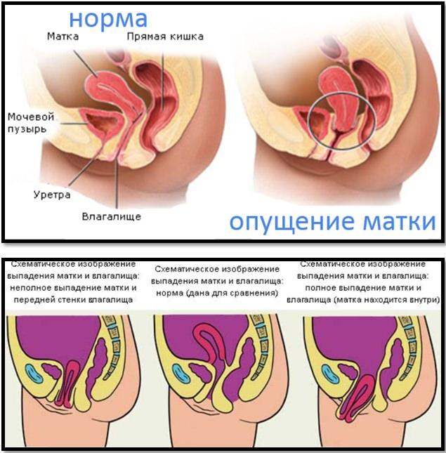 Сравнение влагалище женщины фото, ленкино порно фото