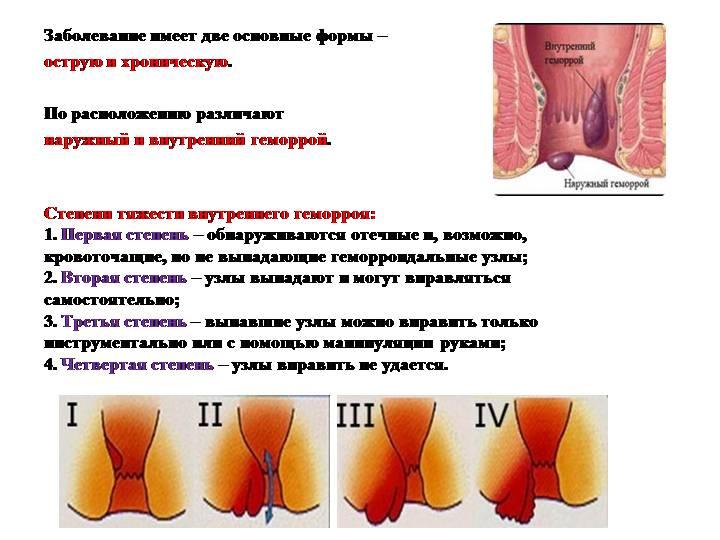 Бесплатное Лечение Геморроя
