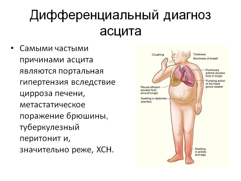 Питание При Циррозе Печени С Асцитом