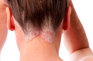 Покраснение кожи, зуд и раздражение: самая необычная причина проблемной кожи в 2019 году