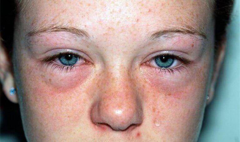 facial-edema-due-to-allergic-reaction-pics-of-mmf