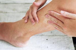 Чешется кожа на ногах ниже колен причины