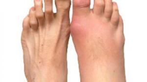 лечение при боли в мышцах и суставах рук