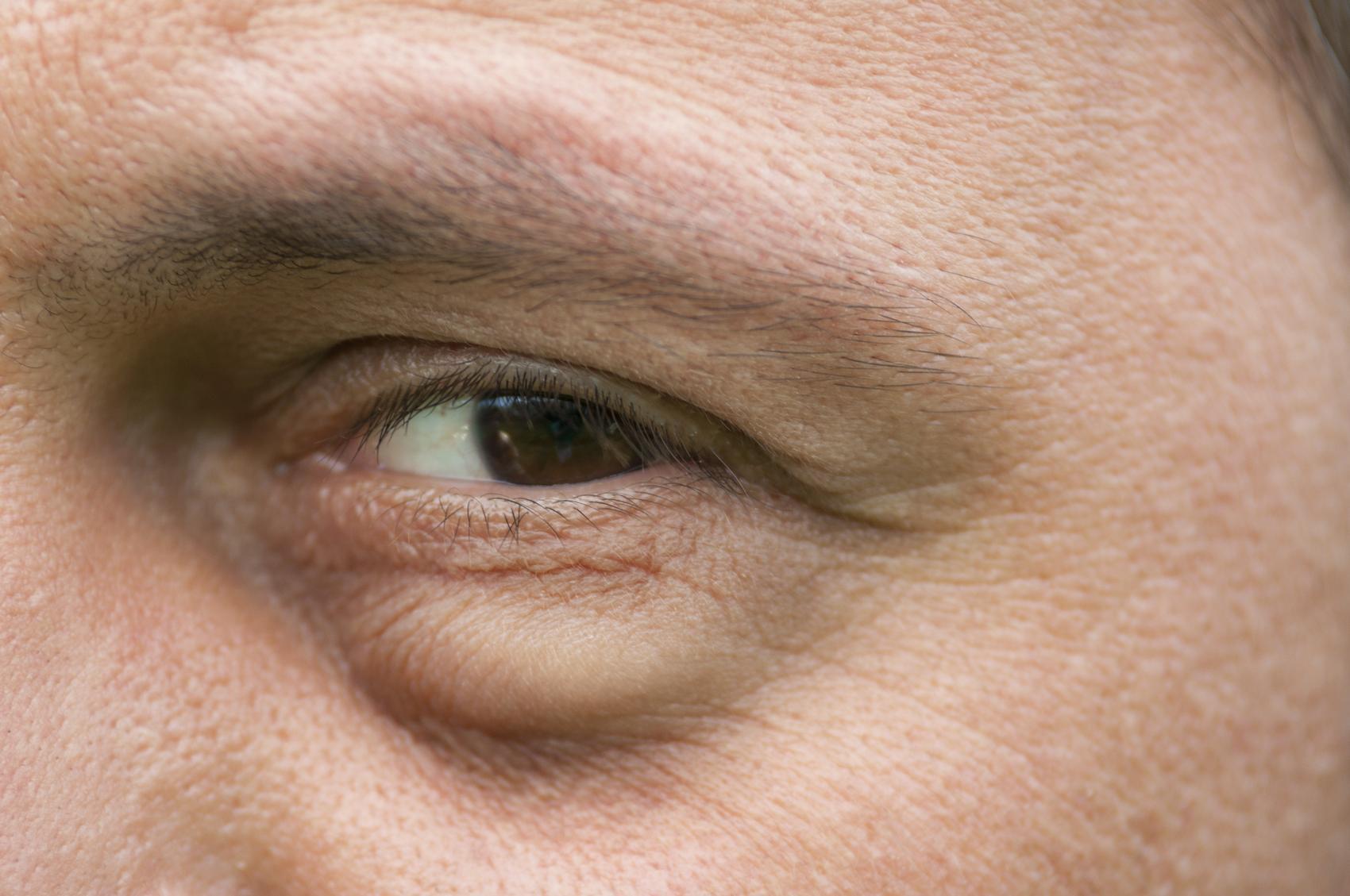 Причины появления отёков под глазами бывают, как естественного, так и патологического характера, в любом случае проблема требует лечения.