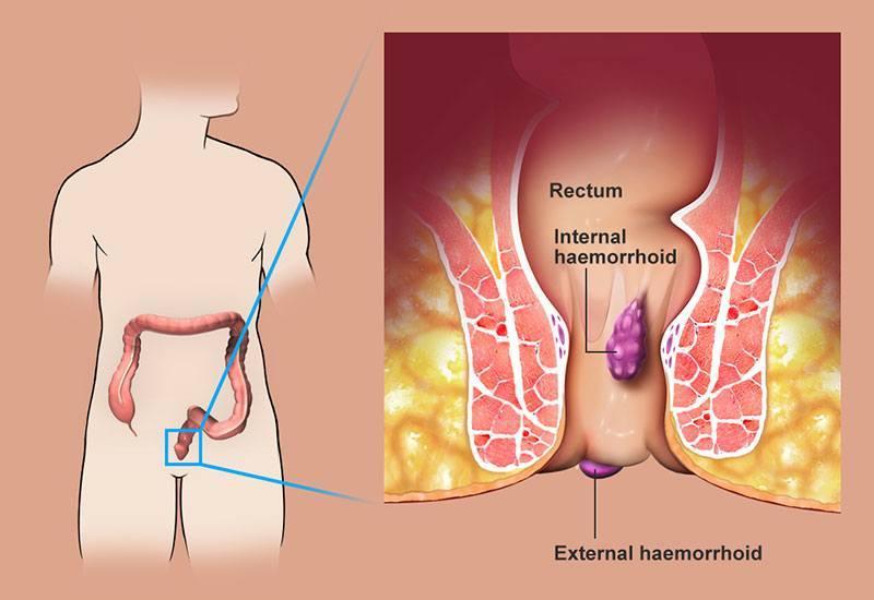 Кровяная дырка в заднем проходе