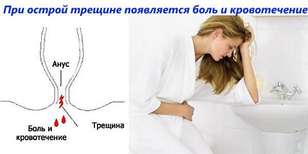 Опорожнения во время секса