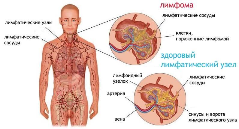 Что такое лимфома: симптомы, типы лимфом, методы лечения и прогноз