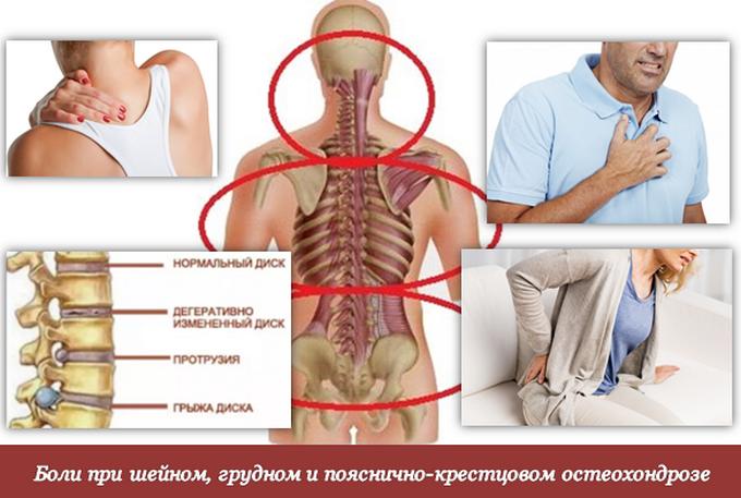 остеохондроз 2 стадии
