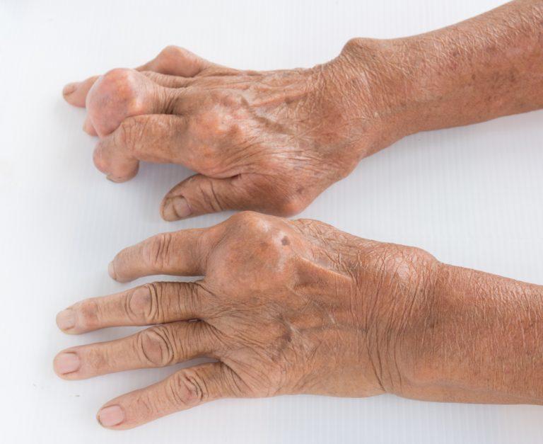 лечение суставов в больших солях