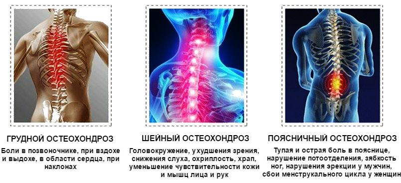 Боль в спине слева выше поясницы