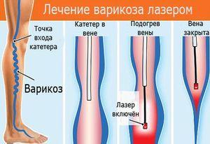 Ретикулярный варикоз лечение Варикоз
