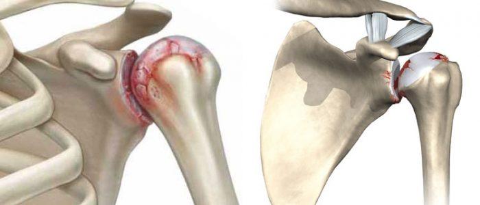 лечение остеоартрита плечевых суставов