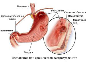 Желч попадает в желудке при беременности