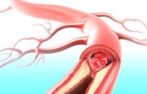 Проверка коронарных сосудов сердца