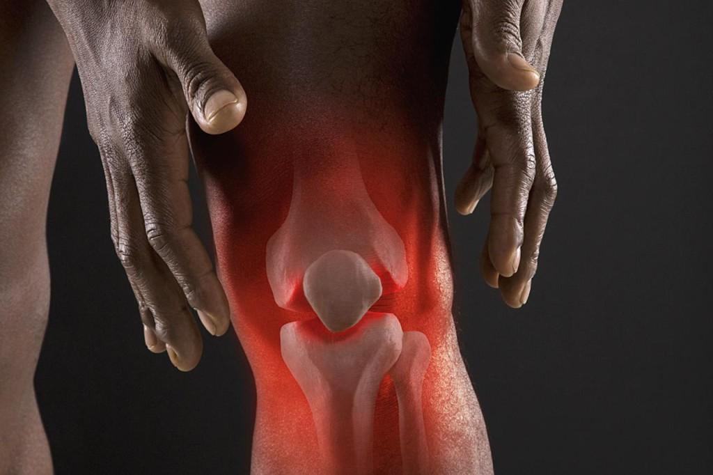 Что делать при болях артрит фото