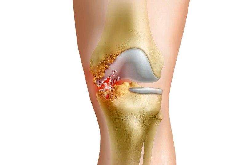 Артрит коленного сустава и тонзиллит фото