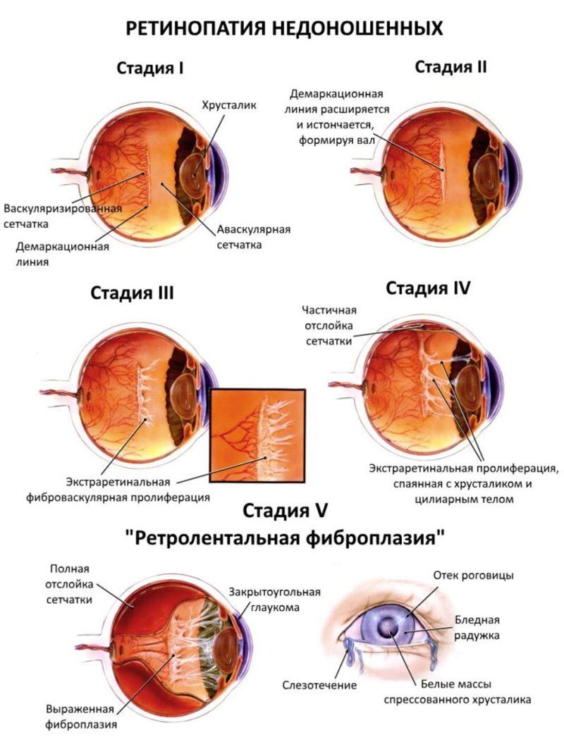 Причины возникновения ретинопатии