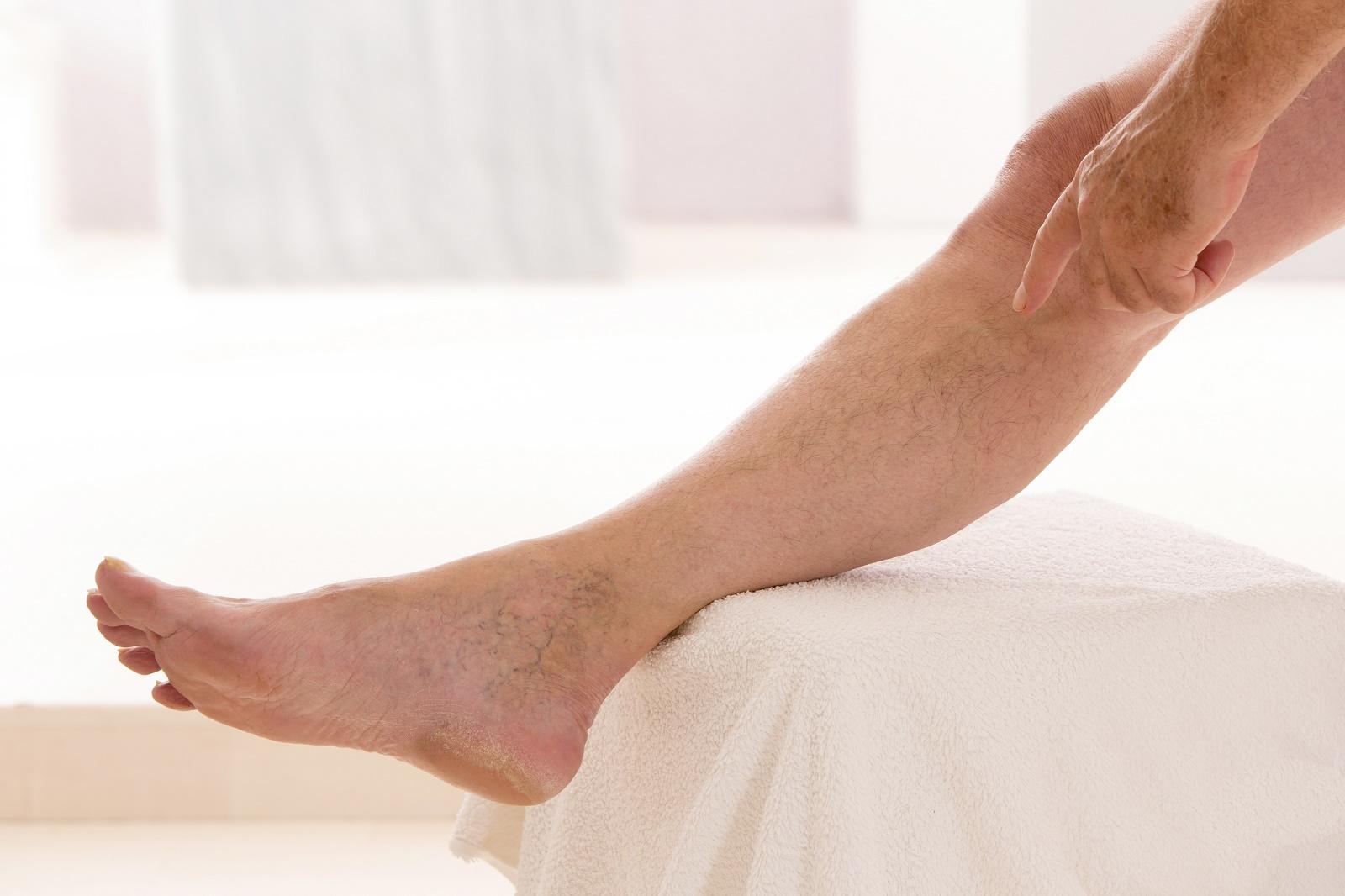 Резь между ногами, Болит сустав между ногой и пахом 15 фотография