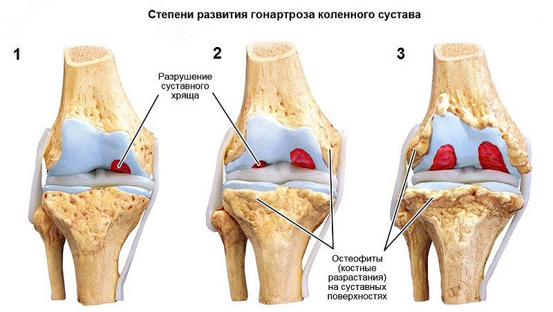 Лечение артрита второй степени коленного сустава фото