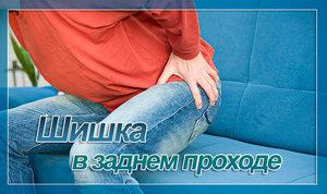 Шишка в заднем проходе у женщин лечение