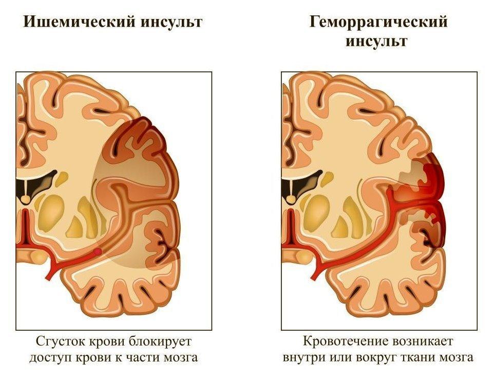 Ишемический инсульт головного мозга – причины, симптомы и ...