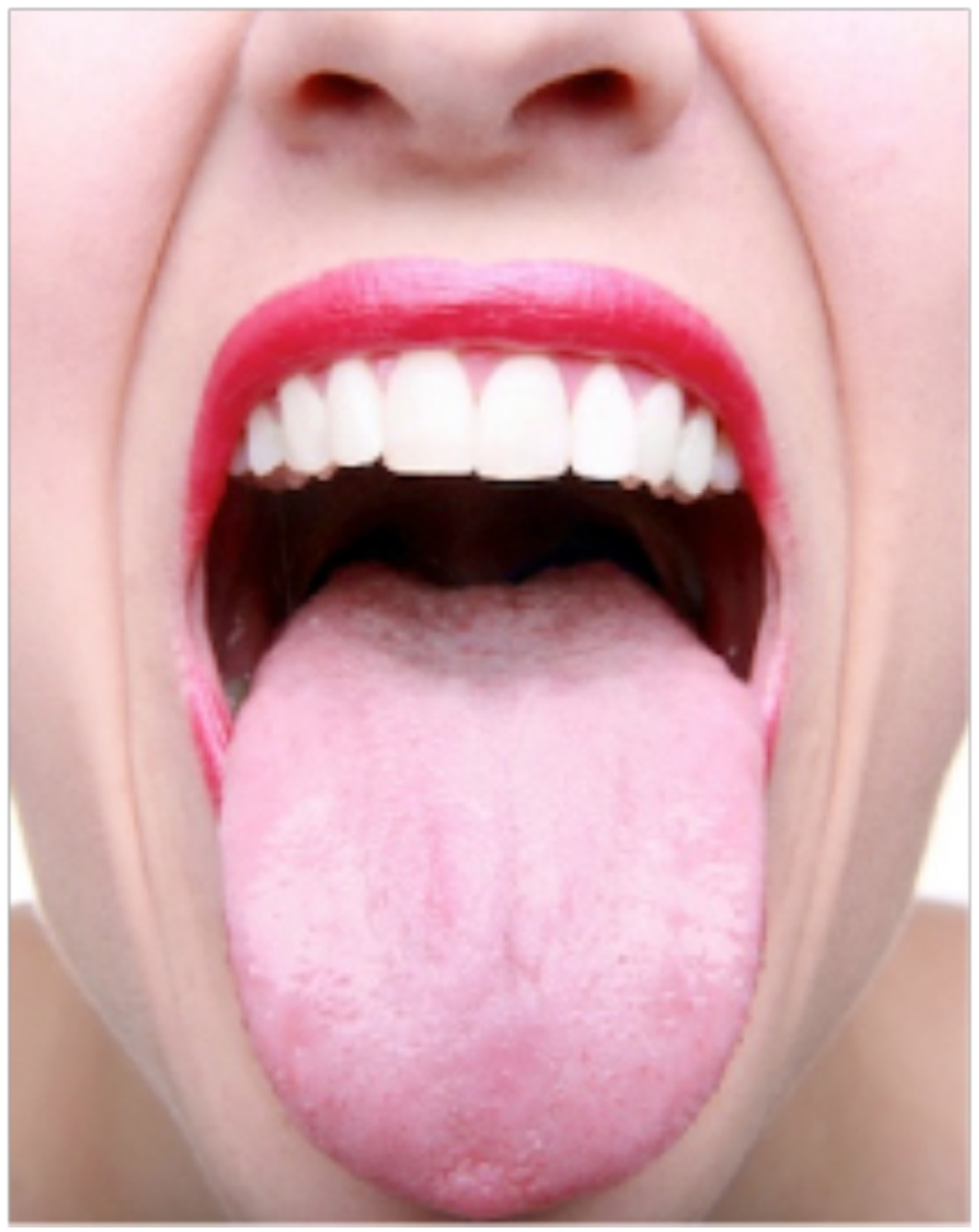 pictures of mouth and tongue disease entusacom - 637×754