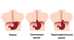 Грыжа пищеводного отверстия диафрагмы диагноз ГПОД 1, 2 степени: что это такое, симптомы и лечение, эндоскопические признаки, причины возникновения, классификация