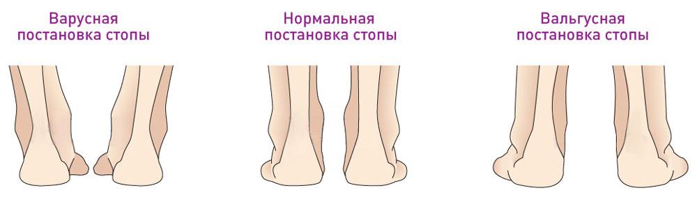 c7776dc2c Варусная деформация стопы характеризуется деформацией центральной части  голени наружу, при которой ступня отклоняется подошвой в другую сторону.